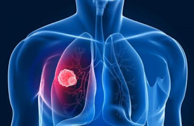 Essential Information Regarding Lung Cancer Staging