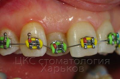 скученное положение зубов