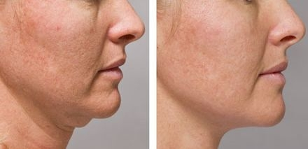 Facial Rejuvenation By Employing Accupressure And Face Yoga Workouts