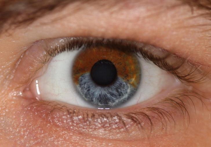 أشياء يمكن أن تغير لون عينيك ليزر يغير لون العين بثوان