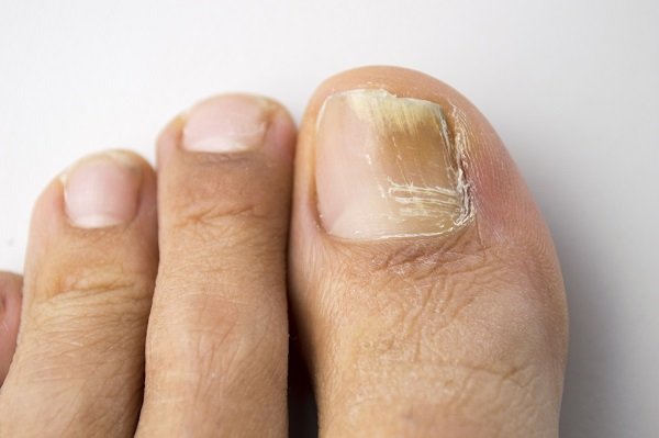 Fungal infection of Nails treatment and remedies | Best Homeopathy ...