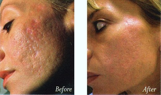 Type Of Acne What Is Mederma Acne Scars