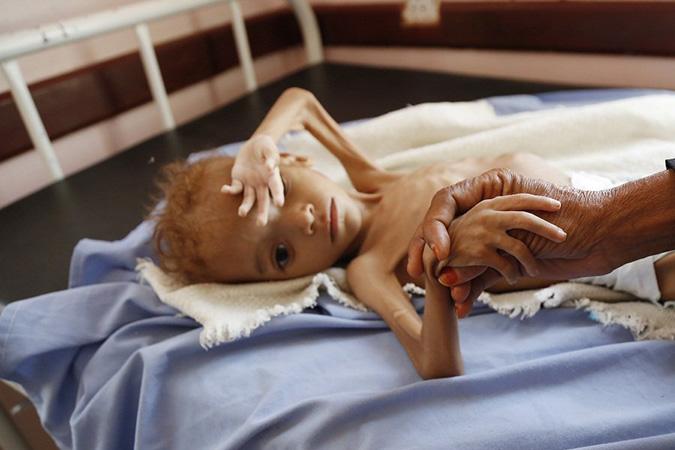 Penelitian Yemen Facing the World's Worst Hunger Crisis