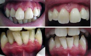 """<Img src =""""Imágenes-periodontitis-sin-y-con-tratamiento-imagen.jpg"""" width = """"593"""" height """"368"""" border = """"0"""" alt = """"Imágenes de un paciente tratado de periodontitis"""">"""