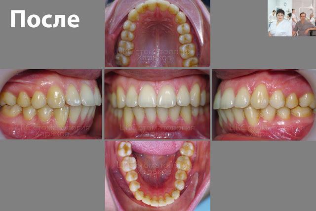 зубы после лечения брекетами
