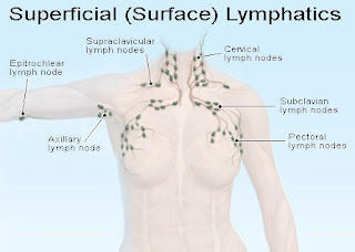 SAN DIEGO LYMER: Pain in areas of lymph nodes