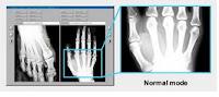noleggio videoproiettore DICOM per raggi X
