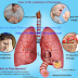 9 Ways Of Treating Pulmonary Pneumonia Naturally