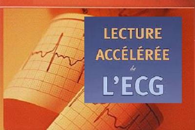 Télécharger Lecture Accélérée de l'ECG PDF
