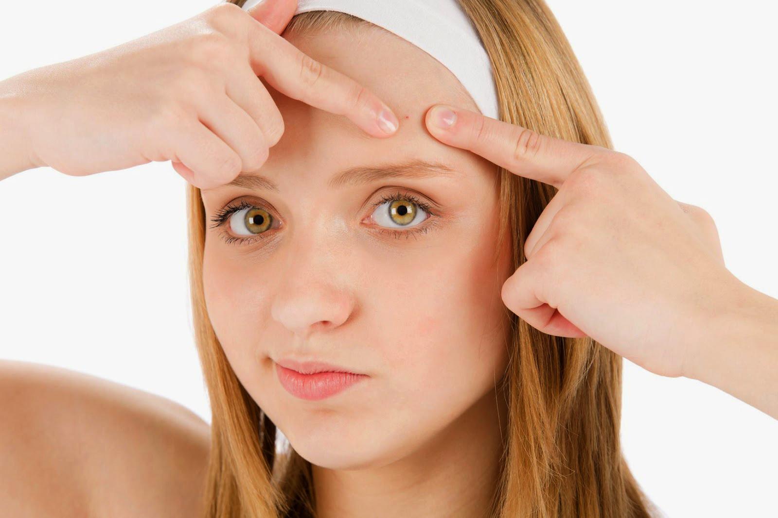 Cara Menghilangkan Jerawat Pada Wajah