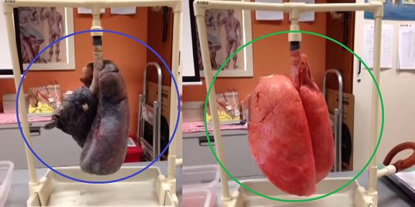 ¿Qué le ocurre a los pulmones después de fumar?