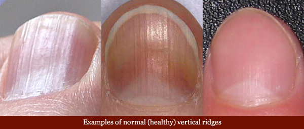 What vitamin deficiency causes ridges in fingernails - Awesome Nail