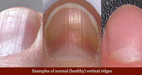 What vitamin deficiency causes ridges in fingernails ... B12 Deficiency Nails