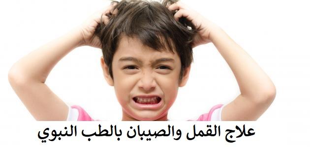 علاج القمل والصيبان جابر القحطاني