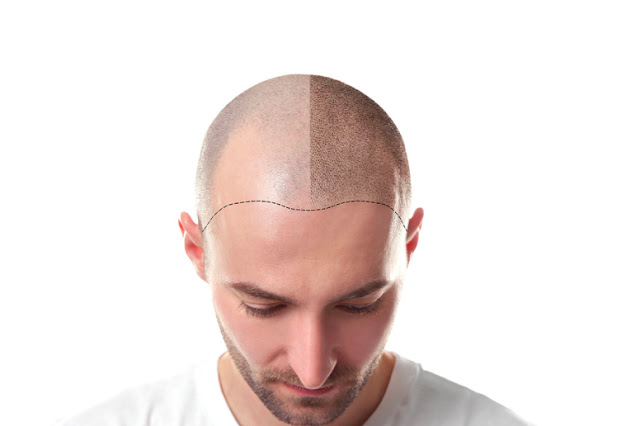 If You Need Hair Transplant Seek A Specialist