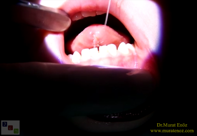Thermal welding ile dil bağı ameliyatı -  Tongue tie release surgery with thermal welding device - Lingual frenectomy operation with thermal welding device - Bloodless and knifeless tongue tie release surgery - Bloodless lingual frenectomy with with thermal welding – Tongue tie treatment in İstanbul, Turkey