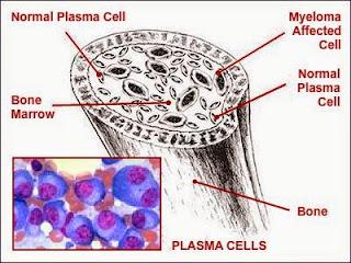 plasmocitom