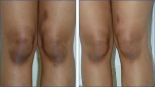 Éclaircir la peau des genoux foncés avec des recettes beauté naturelles