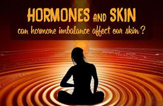 cara mengobati hormon tidak seimbang secara tradisional