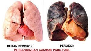 pengobatan alami penyakit paru-paru