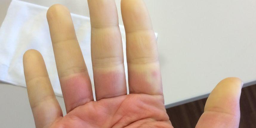 mauvaise circulation sanguine dans les mains