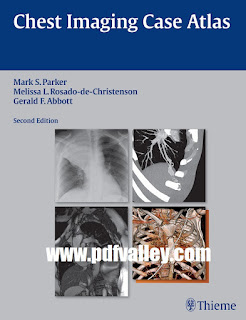 Chest Imaging Case Atlas 2nd Edition