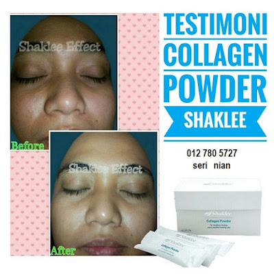 collagen, shakle, kulit moist