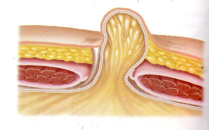 what is a small fat containing umbilical hernia