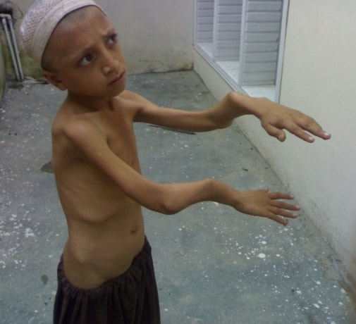 बच्चों में सूखा रोग या कुपोषण क्या है