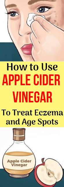 How to Use Apple Cider Vinegar to Treat Eczema and Age Spots