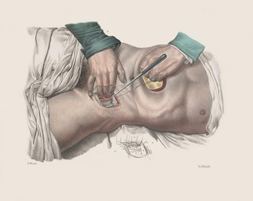 Os horrores da medicina na era vitoriana