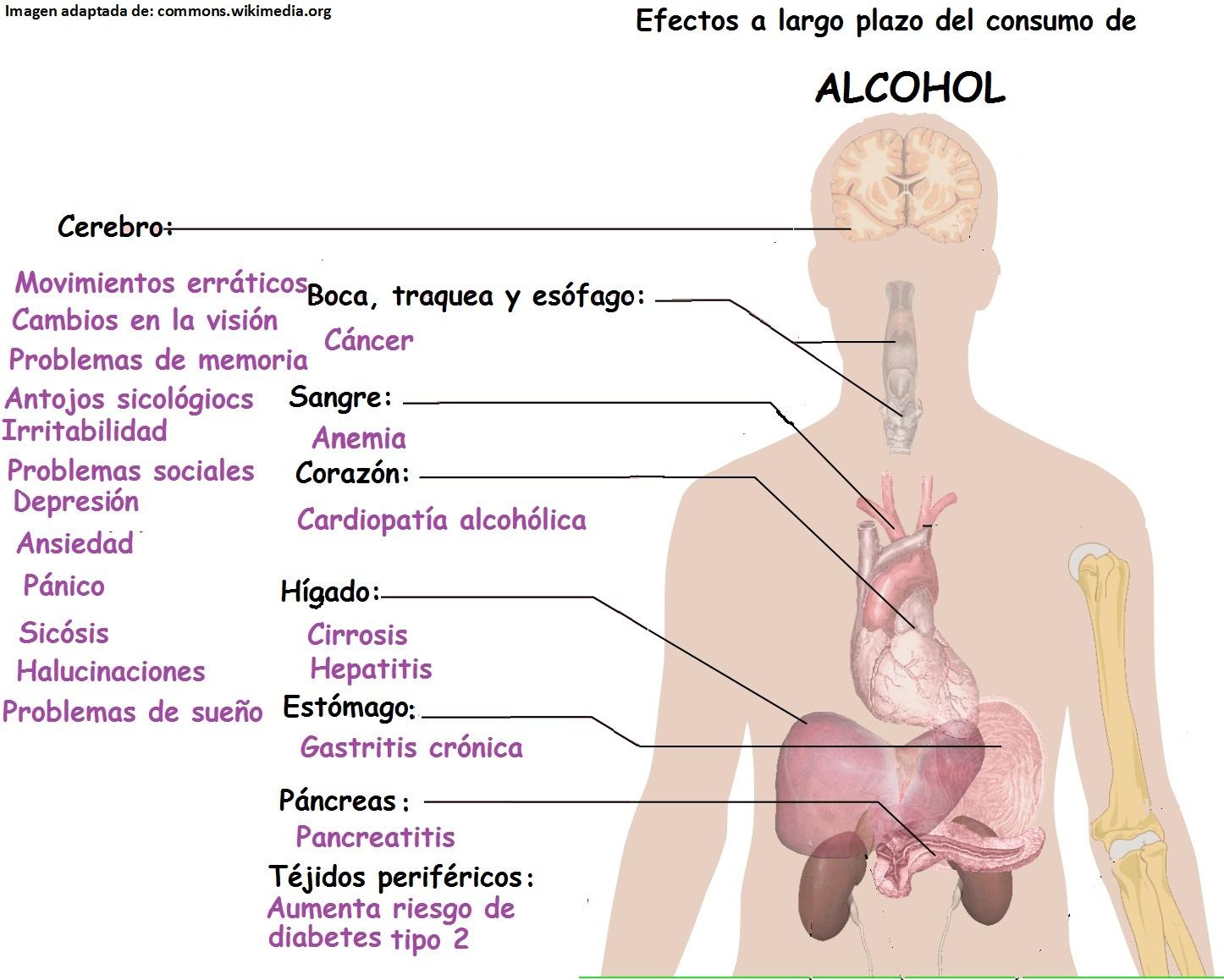 Los síntomas de la degradación de la persona al alcoholismo