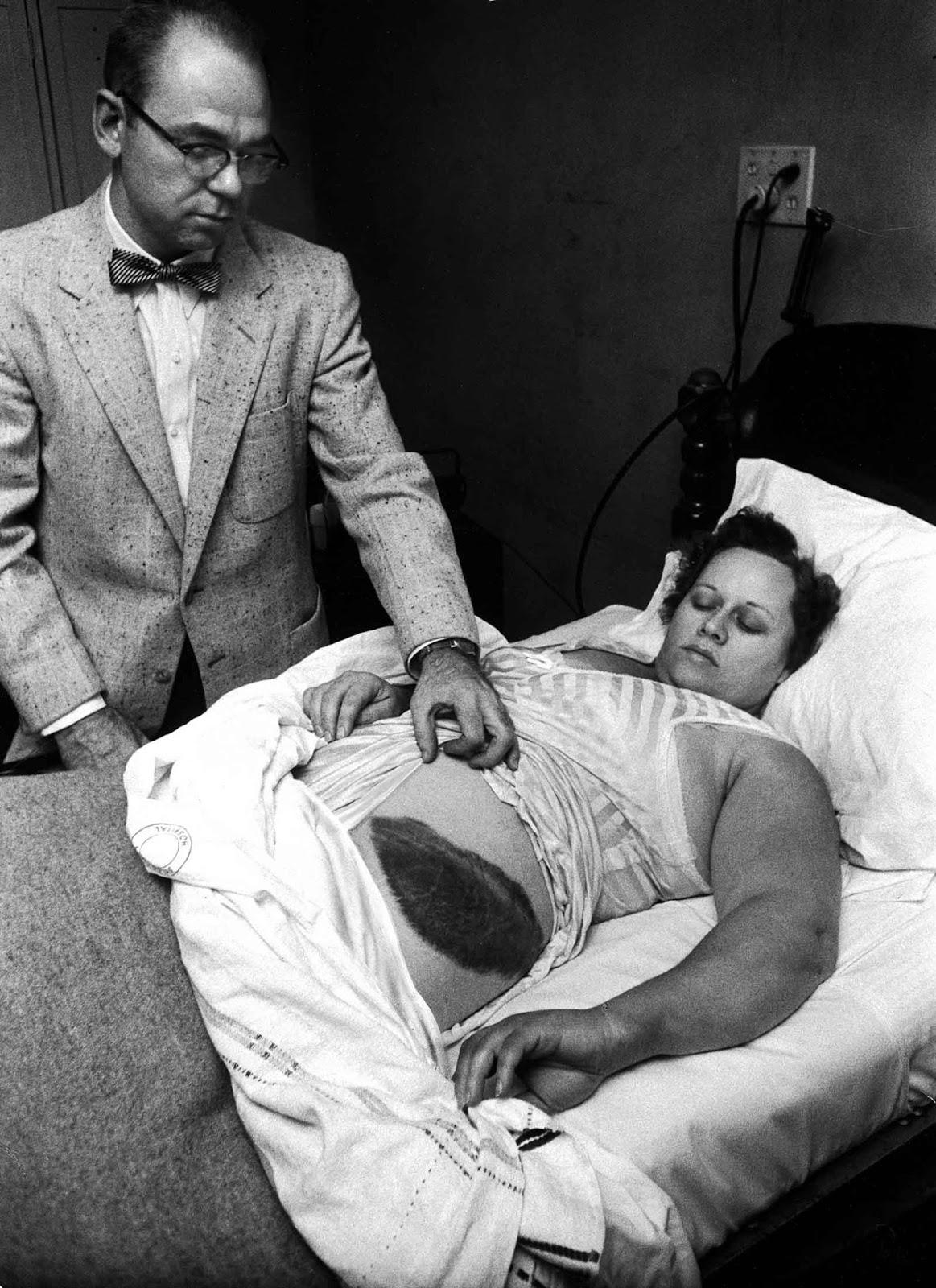 Dr Moody Jacobs shows a giant bruise on side and hip of his patient, Ann Elizabeth Hodges, who had been struck by a meteorite while inside her home, 1954.
