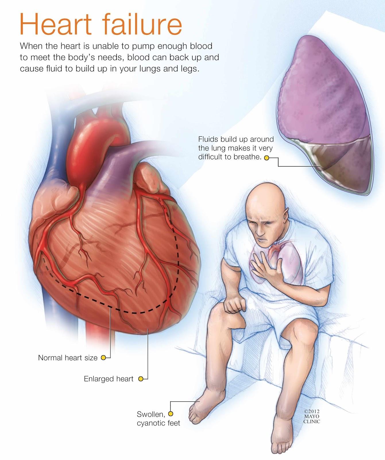 Insuficiencia cardiaca - Primera parte