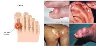Bệnh gout có nhiều biểu hiện rõ nét, nhưng không phải ai cũng phát hiện ra được