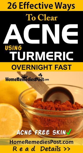 Turmeric For Acne, Turmeric Acne, Turmeric And Acne, Is Turmeric Good For Acne, How To Use Turmeric For Acne, How To Get Rid Of Acne, How To Get Rid Of Acne Fast, Home Remedies For Acne, Acne Treatment,