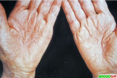 Palm eczema may be aggravated by various topical allergens or irritants and by overwashing