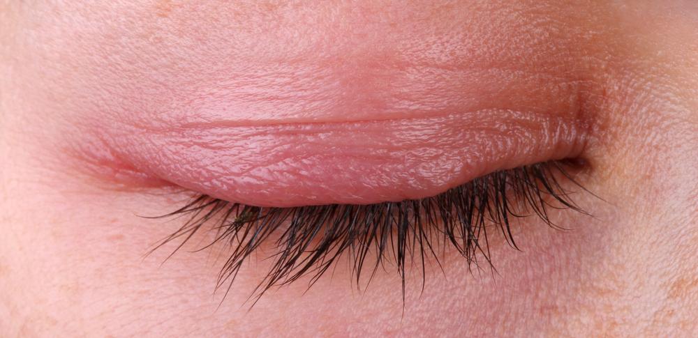 Itchy Irritated Eyelids Fight Back Eyedolatry