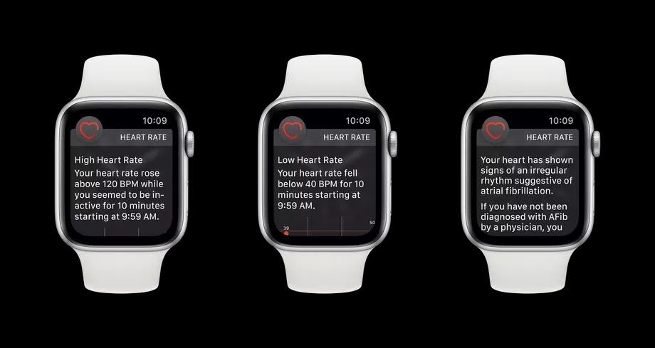 يتوفر تطبيق ساعة آبل على معدل ضربات القلب غير المنتظم