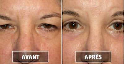 Les yeux profonds ou creux : Causes et traitements