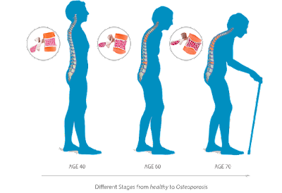 milagros untuk osteoporosis