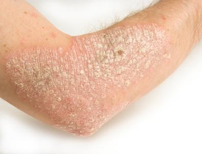 Hasil gambar untuk kulit kering