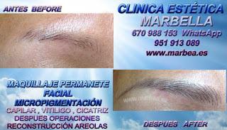microblading cejas en Málaga Clínica Estética Maquillaje Permanente Facial,  Micropigmentación Capilar y microblading cejas en Málaga y Marbella: Te ofrecemos la mayor calidad de servicios con los mejores profesionales en micropigmentación capilar y microblading cejas