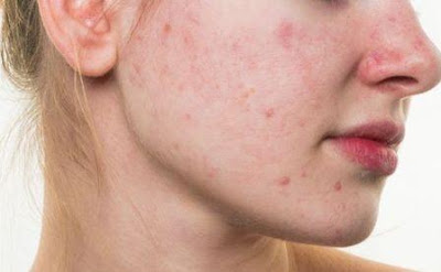 Remove Your Acne With 7 Natural Ingredients