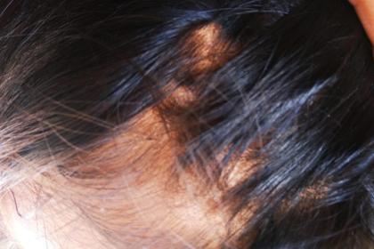 3 Cara Menghilangkan Kutu Rambut Secara Alami Dan Permanen