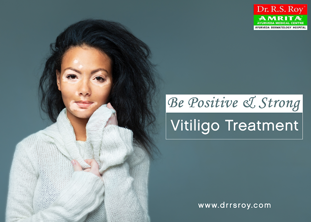 http://drrsroy.com/vitiligo.html