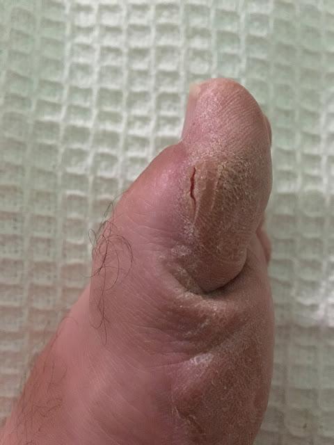 Pękająca skóra