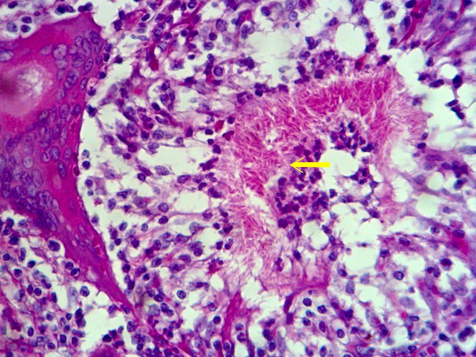 Oakley Fuel Cell Sunglasses >> HISTOPATHOLOGY: Granulomatous Mastitis (Fungal)