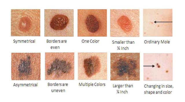 what are the types of skin cancer and their characteristics