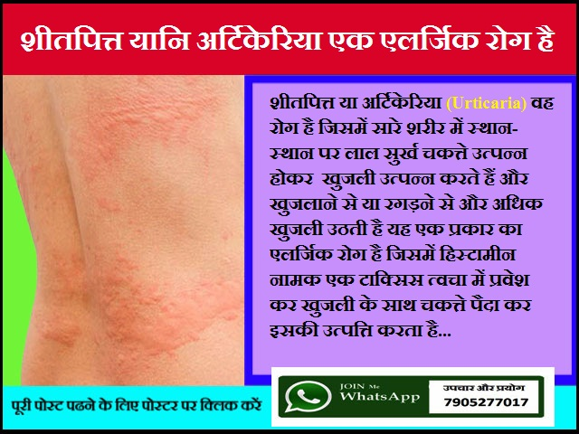 शीतपित्त यानि अर्टिकेरिया एक एलर्जिक रोग है